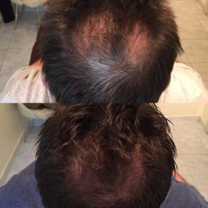 PRP Injection for Hairloss